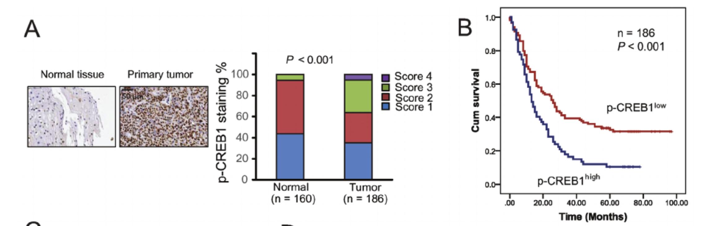 肿瘤特异性高表达而且是风险因子